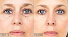 Medically, they are harmless circles that are visible in some people due to increased pigmentation compartment under the eyes, but also due to...