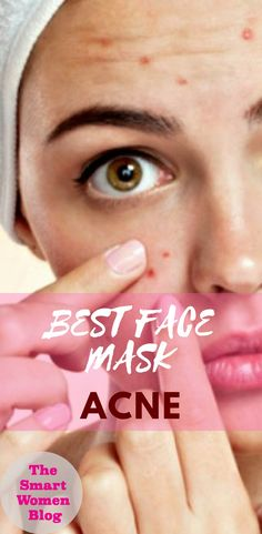 10 Best Face Masks for Acne Get rid of the Acne forever! With these high quality premium face masks. # facemask 10 Best Face Masks for Acne Get rid of the Acne forever! With these high quality premium face masks. Acne Face Mask, Best Face Mask, Acne Skin, Diy Face Mask, Face Face, Dry Face, Acne Scars, Skin Tags On Face, Facial Lotion