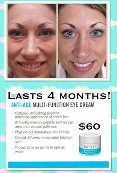 Love love Rodan +Fields multifunction eye cream! Just look at these results. Order some for yourself today and if you don't see the results you are looking for send it back with the 60 day money back guarantee that all of our products offer!!! What are you waiting for? http://megpickens.myrandf.com