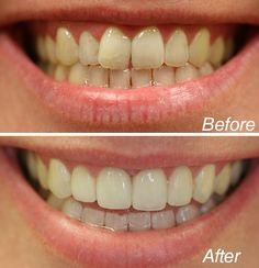 Dentist Nyc, Celebrity Dentist, Cosmetic Dentistry, White Teeth, Teeth Whitening, Cosmetics, Celebrities, Teeth, Tooth Bleaching