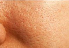 What is the best foundation for large pores on oily skin that is acne prone