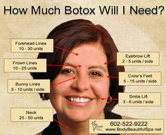 How Much Botox Will I Need? Luxury Med Spa in Farmington Hills, MI is a GREAT place to pamper yourself! Call (248) 855-0900 to schedule an appointment or visit our website medicalandspa.com for more information!