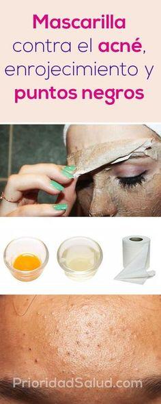 Suffering From Acne? Top Ways To Eliminate Acne – Fashion Trends Beauty Care, Beauty Skin, Beauty Hacks, Health And Beauty, Beauty Ideas, Diy Beauty, Face Beauty, Healthy Beauty, Homemade Beauty
