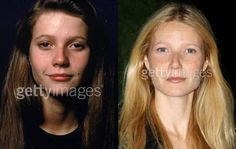 celebrity surgery gone wrong | Gaping At Celebrities: Plasticopedia {Beauty Notes} | The Scented ...