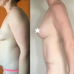 Exceptional Tummy Tuck + Breast Augmentation results! This transformation was completed with the one and only Dr. Pornthep in Bangkok with 300cc, Moderate Plus Profile, round Implants (image before and 4 months post op)  If you're interested in travelling to Thailand for surgery enquire via the link in our bio!  #cosmeditour #cosmeditourbabe #breastaugmentation #breastimplants #breastsurgery #tummytuck #mummymakeover #plasticsurgeon #cosmeticsurgery #medicaltravel #medicaltourism