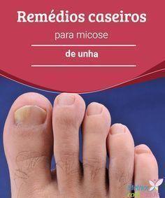 Remédios caseiros para micose nas unhas É mais frequente nos dedos dos pés, mas pode aparecer nas mãos. Além de ser antiestético, não ficar nada bem, a solução para sua micose pode estar aqui...