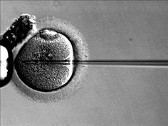 Fertility medical course of action. http://www.ways-to-get-pregnant.us/ivf-treatment.html The Gift of Life