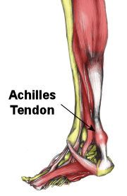 Article from Dance Advantage: Achilles Tendon: Dancer Injury and Prevention