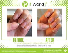 Longer, Stronger nails courtesy of It Works Hair Skin Nails supplement. Just 2 pills once a day. :)