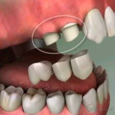 Visual on a bridge and how that connects! #CosmeticDentistry #Tooth #Bridge