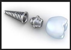 Mesa AZ Dentist 85213: Dental Implants Crowns and Bridges Mesa AZ Dentist...