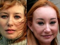 Plastic Surgery Gone Wrong Plastic Surgeries Gone Wrong Celebrity Plastic Surgery Gone Wrong Before And After Worst Plastic Surgery Hollywood Celebrity Before After