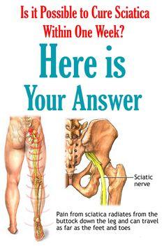 Sciatic Nerve Exercises, Sciatic Nerve Relief, Sciatica Stretches, Sciatic Pain, Back Pain Exercises, Sciatica Massage, Nerve Pain, Stretch Routine, Sciatica