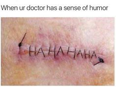 Well, that's a funny scar