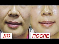 Remove wrinkles from your mouth in 3 Days guaranteed success Face Care, Body Care, 20 Min Ab Workout, Neck Wrinkles, Face Exercises, Face Yoga, Face Massage, Les Rides, Bright Skin