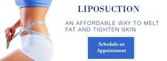 Did Diet and Exercise Fail in losing weight? Liposuction is surgical procedure that can rid you of fat located in hard-to-lose parts of the body – and in so doing, can help produce a toned and trimmed look that can have a profound impact on how you feel, both physically and emotionally, about your body. Get FREE Consultation or Book Appointment with best cosmetic and plastic surgeon in Delhi, India @ http://www.miragesearch.com/india/new-delhi/liposuction or call +91-9711586419 to know more.