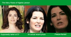 Nigella Lawson has come under the fire with plastic surgery accusations. Before and after photos suggest that she's had Botox and a possible facelift.
