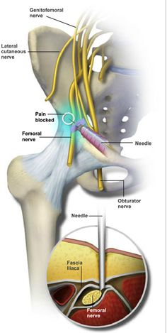 A Sacroiliac Joint Steroid Injection Procedure Is