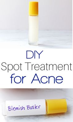 Spot Treatment for Acne A simple home remedy for acne that works fast. Your skin will be clear and glowing with this DIY spot treatment.A simple home remedy for acne that works fast. Your skin will be clear and glowing with this DIY spot treatment. Back Acne Treatment, Natural Acne Treatment, Natural Skin Care, Natural Beauty, Overnight Acne Treatment, Homemade Acne Treatment, Natural Face, Home Remedies For Acne, Acne Remedies