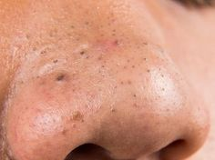 How to get rid of blackheads on face? How to treat chin blackheads? Home remedies for blackheads on face & nose. Treat blackheads on chin naturally & fast. Blackhead Remedies, Blackhead Remover, Acne Treatment, Vitiligo Treatment, Points Noirs Extraction, Baking Soda And Lemon, Get Rid Of Blackheads, Skin Care Products, Hair Growth