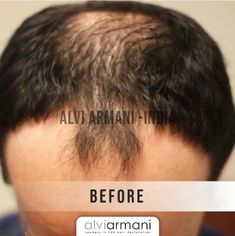 Alvi Armani Hair Restoration specializes in Advanced FUE Hair Transplants, Offices in Los Angeles, CA. Hair Transplant In India, Best Hair Transplant, Armani Hair, Natural Hair Care, Natural Hair Styles, Hair Restoration, Beverly Hills, Clinic, Cool Hairstyles