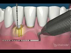 Gum Disease Treatment - Gum Surgery for Receding Gums - Implant & Gumcar...http://www.youtube.com/watch?v=uhPCv48qwe4