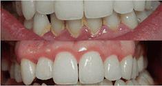 Шкатулка рецептов : Протрите зубы и десна этими двумя маслами, и Вам больше не придется идти к стоматологу!