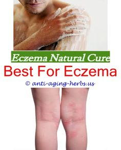 behind ear eczema | ear rash eczema | Pinterest