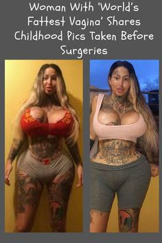 Woman With 'World's Fattest Vagina' Shares #Childhood #Pics #Taken #Before #Surgeries