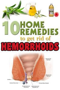 How to Naturally Get Rid of Hemorrhoids – 10 Home Remedies