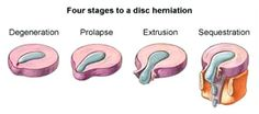 Four Stages to a Disc #Herniation: #Degeneration, Prolapse, Extrusion, Sequestration. Get #Chiropractic to Stay Healthy.