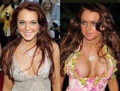Celebs with Bad Plastic Surgery | bad celebrity plastic surgery