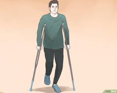 4 Ways to Prepare for ACL Surgery - wikiHow