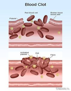 Hemostasis is the body's natural ability to stop bleeding, the ability to clot blood. The clotting cascade is an example of a positive feedback mechanism in the body because it builds upon itself and gets stronger in order to achieve the desired result.