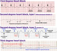 Second Degree Heart Block, Mobitz Type I (Wenckebach) P waves and QRS complexes Cardiac Nursing, Nursing Mnemonics, Oncology Nursing, Heart Block Poem, Ekg Interpretation, P Wave, Nursing Information, Nursing School Notes, College Nursing