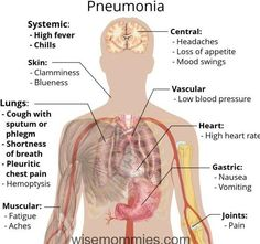 Pneumonia is a lung infection. The problem of pneumonia is caused by factors such as virus, bacteria and fungi. Some of the symptoms resulting from pneumonia Med Student, Medical Student, Nursing Students, Medical Assistant, Nursing Schools, Medical Science, Medical School, Medical Care, Dental Care