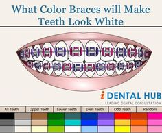 When you have decided to go for braces treatment, then there is option of going for color bands. These are commonly called as color braces. These come in many colors and you can choose color of your choice for braces to suit your face.