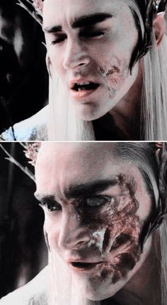 I think that Thranduil really is burned like that, he just uses a glamour or something to cover it up...