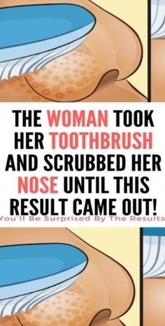 The Woman Took Her Toothbrush and Scrubbed Her Nose Until This Result Came Out - Latest Health Ideas Skin Routine, Wash Your Face, Tips Belleza, Coming Out, Healthy Skin, Healthy Meals, Healthy Tips, Stay Healthy, Healthy Drinks