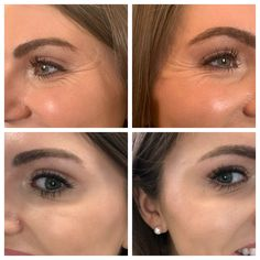 All About Getting Botox in Your - Run Your Mouth Chicago Cosmetic Fillers, Botox Fillers, Dermal Fillers, Botox Before And After, Botulinum Toxin, Ipl Laser, Hair Removal Machine, Crows Feet, Anti Aging Moisturizer