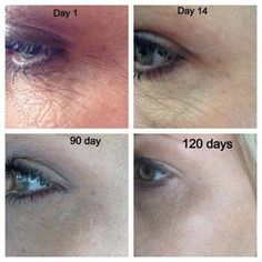#Love my #Nerium! Amazing results and #no #needles! #Healthy #skin. Click here: www.success09.nerium.com