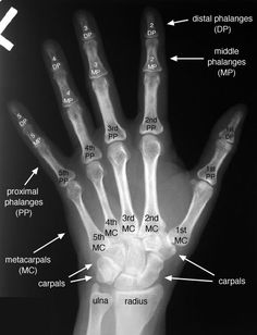 radiology+images | Hand -- Posteroanterior (PA) View, Labelled