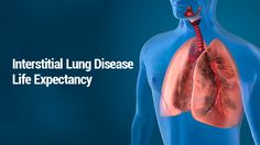 Interstitial Lung Disease Life Expectancy