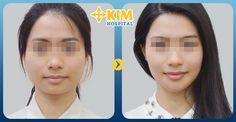 Gọt mặt có hại không và tại sao?