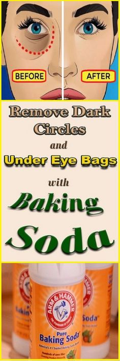 Remove Dark Circles & Under Eye Bags & Baking Soda & Lemon! – Health Beauty Ho… Dark Circles & Under Eye Bags & Backpulver & Zitrone entfernen ! Home Remedies, Natural Remedies, Swollen Eyelid, Diy Beauty Hacks, Beauty Tips, Beauty Secrets, Makeup Tricks, Baking Soda Mask, Baking Soda And Lemon