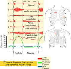 Phonocardiograms from normal and abnormal heart sounds with pressure diagrams with location on the precordium