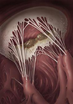 """Vegetative Growth on Mitral Valve"" - Alexandra Baker, DNA {human anatomy painting art} Heart Anatomy, Anatomy Art, Mitral Valve, Robotic Surgery, Biology Art, Medical Pictures, Cardiac Nursing, Human Body Anatomy, Medical Anatomy"