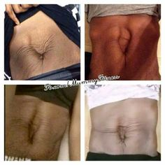 """Hi ladies! I have another special guest blogger on today talking about her major case of Diastasis Recti and how she conquered it naturally! She is so inspiring and I hope you all enjoy her as much as I do~ 5 years ago I had never even heard the words """"diastasis recti"""". After having my Read more."""
