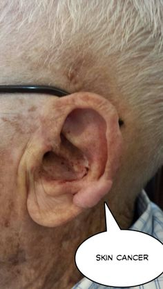 Several skin cancer areas on face and ears