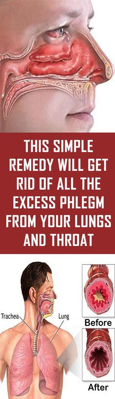 Sinusitis Remedies This Simple Remedy Will Get Rid Of All The Excess Phlegm From Your Lungs And Throat Natural Health Tips, Natural Health Remedies, Natural Cures, Natural Healing, Herbal Remedies, Sinus Remedies, Cold Remedies, Diarrhea Remedies, Holistic Remedies